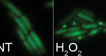 DEATH BLOW : Isolated bright spots show double-strand DNA breaks fatal to bacteria.