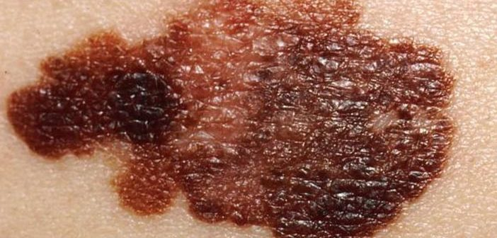 A new study finds that melanoma screening by primary care providers did not lead to a spike in dermatologist visits or skin surgeries. Photo courtesy Wikimedia Commons/National Cancer Institute