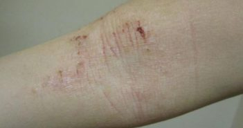 Despite mixed evidence recently about an association between atopic dermatitis and cardiovascular disease, a new study that analyzed more than 250,000 medical records suggests there is no link. Wikimedia Commons photo