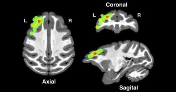 Brain images from different angles show locations in the dorsolateral prefrontal cortex where researchers made their measurements. Courtesy Asaad et al.