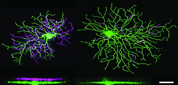 Retinal cells. Photo courtesy Berson Lab.