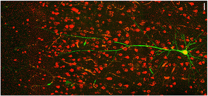 As part of her study, Judy Liu and her team looked at neurons in the somatosensory cortex in mouse models of epilepsy. Courtesy Liu et al.