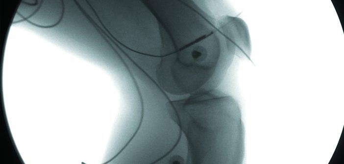 INSIDE LOOK: A video x-ray shows the position and subtle motions of a human healthy knee during landing from a one-leg hop. The visible wires and radio-opaque spheres are part of skin mounted biomechanics equipment that synchronize with the XROMM measurements. Image courtesy Braden Fleming