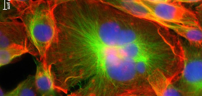 "Giant cancer cells surrounded by other, smaller cancer cells. ""The giant cancer cells break all the cancer rules,"" study co-author Michelle Dawson says. Photo courtesy Dawson Lab"