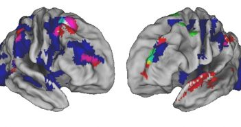 The areas of the brain that are active in three separate experiments (colored red, blue, and green) as you monitor or perform a complex sequence, like making a cup of coffee. There is significant overlap (pink, cyan, yellow, and white) in the very front of the brain indicating the region's importance. Courtesy Desrochers Lab