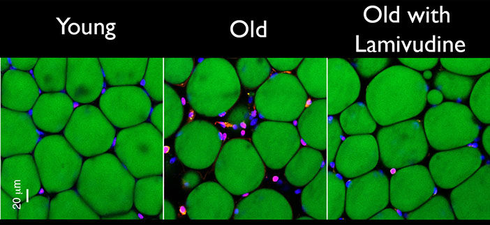 Two weeks of treatment with Lamivudine reduced the signs of chronic inflammation—white blood cells stained pink amongst green fat cells—in old mouse fat tissue. Image courtesy Sedivy Lab