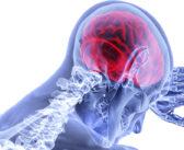 Researchers Combine Forces to Detect, Prevent TBIs